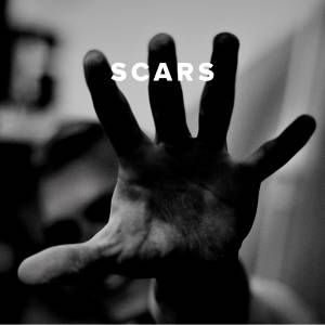 Worship Songs about Scars